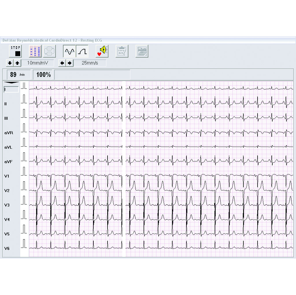Stress Test Application: Spacelabs CardioDirect Stress Test