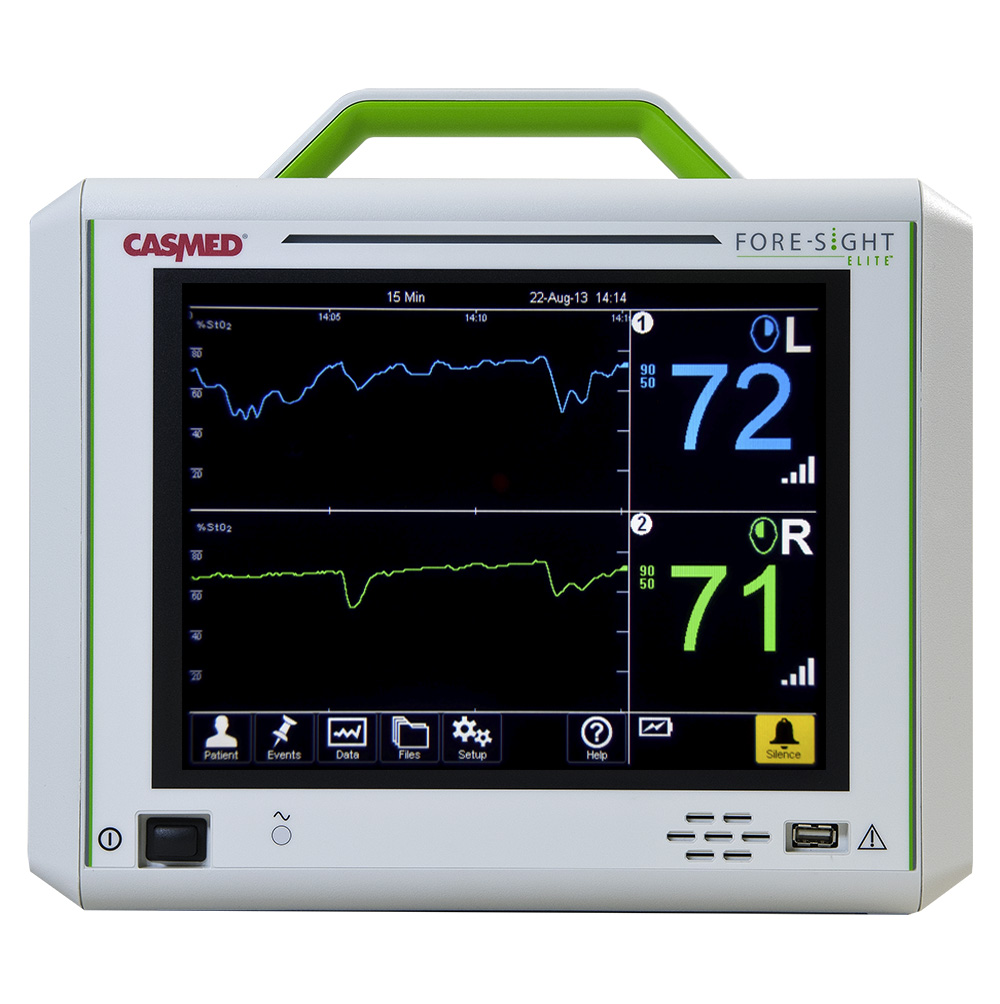 Casmed Fore Sight Elite Tissue Oximeter Ecomed